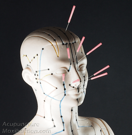 Acupuncture needles on face
