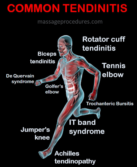 Common tendinitis locations - rotator cuff tendinitis, tennis elbow, jumper's knee, Achilles tendinitis