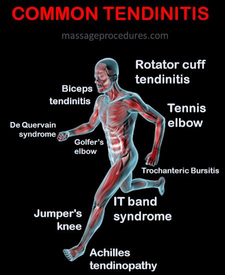 Common tendinitis locations - rotator cuff tendinitis, tennis elbow, jumper's knee, Achilles tendinitis